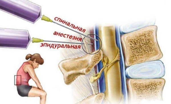 Разница между анестезиями